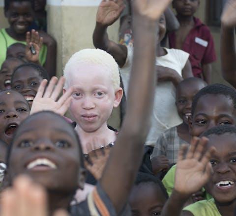 Annie Alfred uit Malawi
