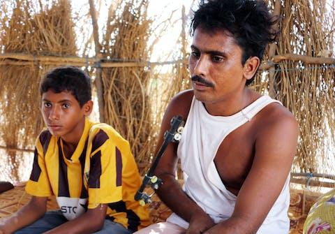Hindi Ibrahim (25), vader van twee kinderen, raakte gewond bij een explosie, toen hij en andere dorpsgenoten bezig waren om honderden 'subexplosieven' van een clusterbom op te ruimen in hun dorp in het noorden van Jemen.
