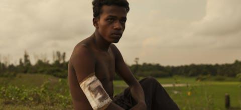 Gewonde Rohingya-man