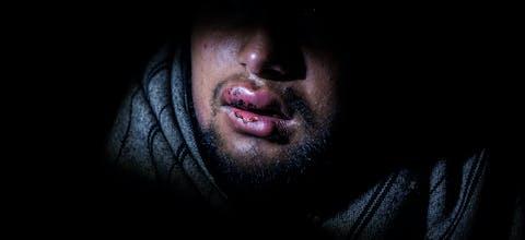 Hammad (17) uit Pakistan met verwonde en gezwollen lippen, resultaat van klappen met een wapenstok door de Kroatische politie.